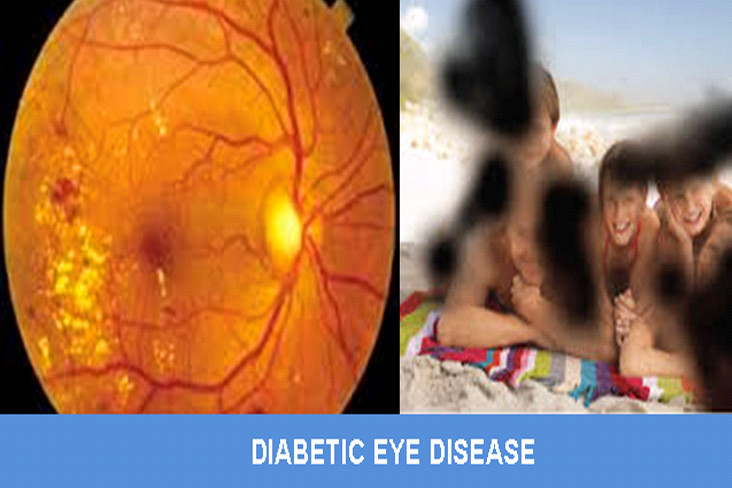 diabetic-eye